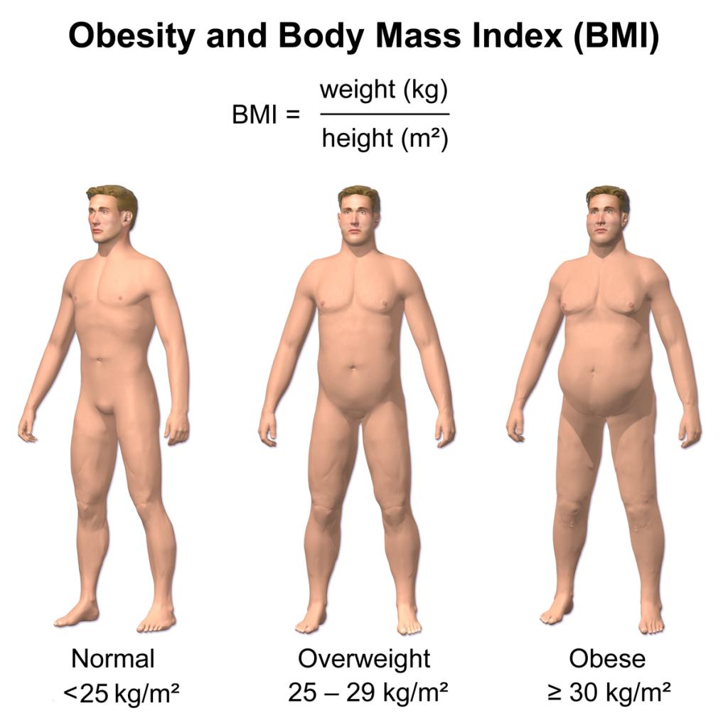 Obesity_&_BMI